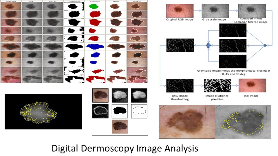 Digital Dermoscopy Image Analysis