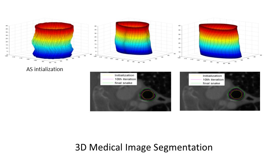 3D Medical Image Segmentation